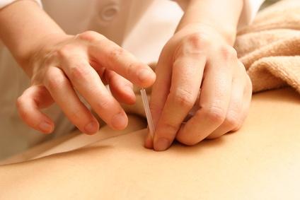 トリガーポイント針治療