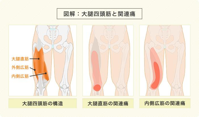 膝痛の図解