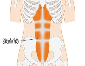 腹直筋が原因の腰痛 | 京都平川接骨院/鍼灸治療院グループ