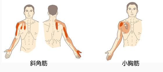斜角筋と小胸筋のトリガーポイント