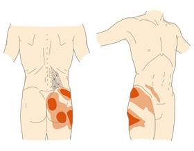 筋 腰 方形