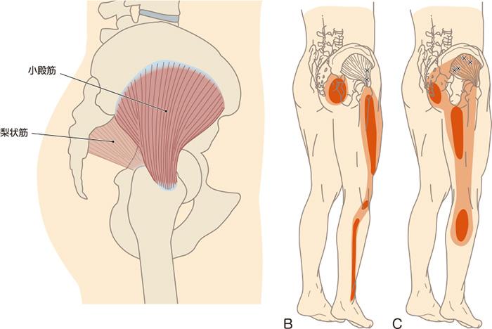 むずむず脚症候群の図解
