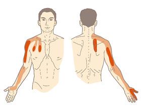 甲骨 しこり 肩 肩にしこりが! それは肩こりの最終形態の筋硬結かも