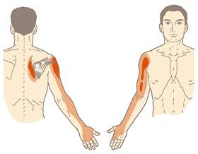 内側 痛い 腕