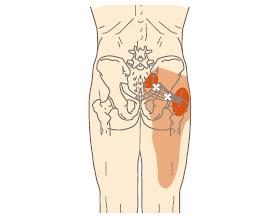 症候群 梨 状 筋